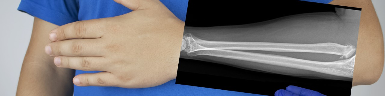 X-ray of a Man's Forearm